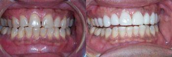 Permanent Teeth Deland