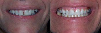 Fixed Dentures Deland
