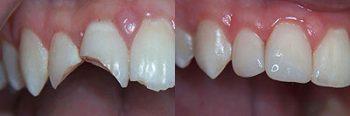 Hybrid Dentures Deland