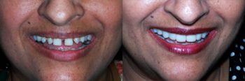 Digital Dentistry Deland