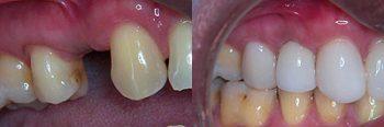 Sedation Dentostry Deland