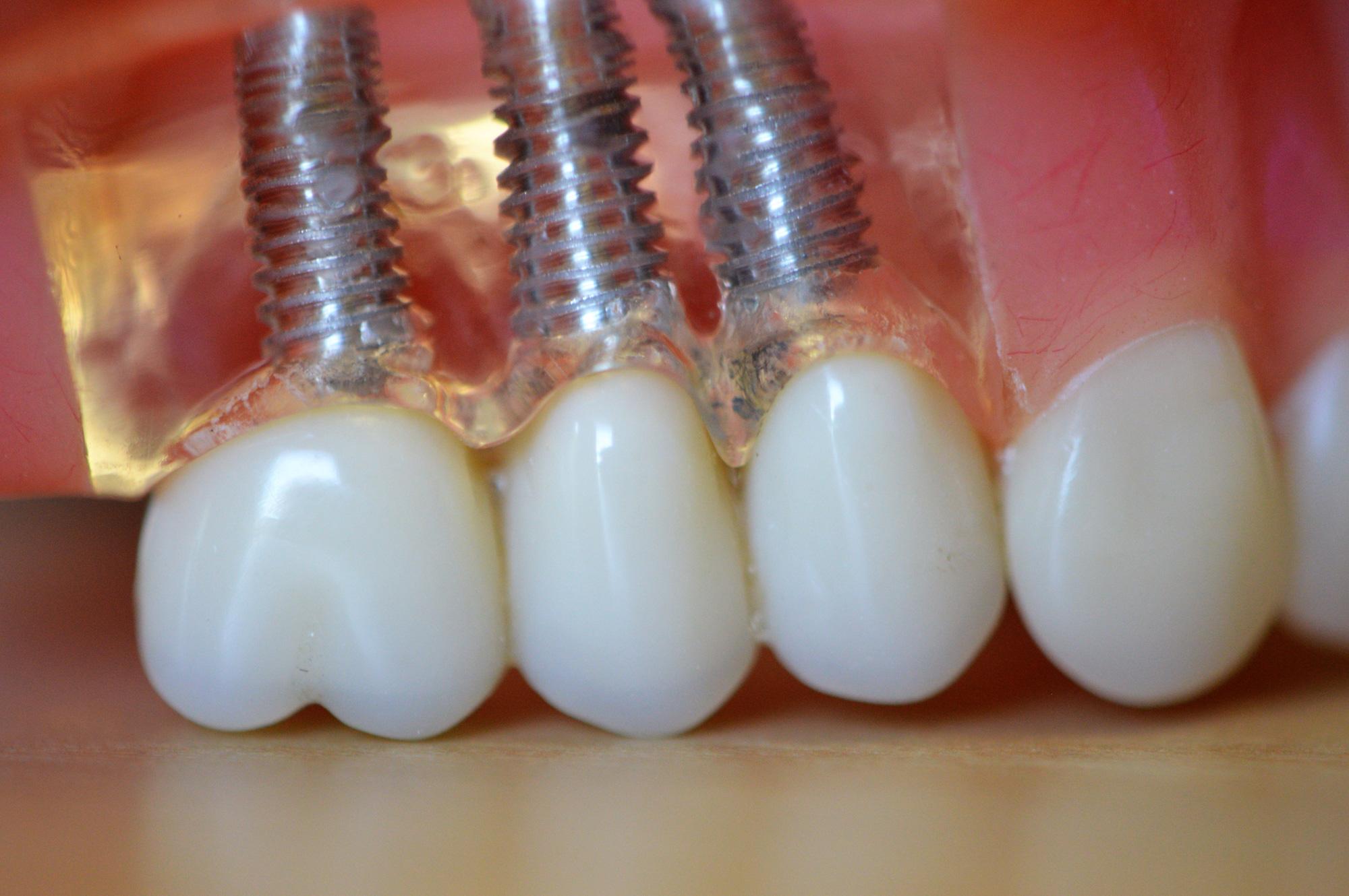 Cosmetic Dentistry Deland
